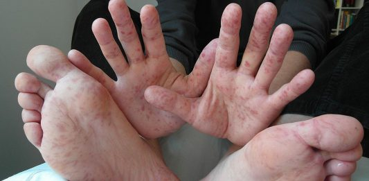 El ayak ağız hastalığı