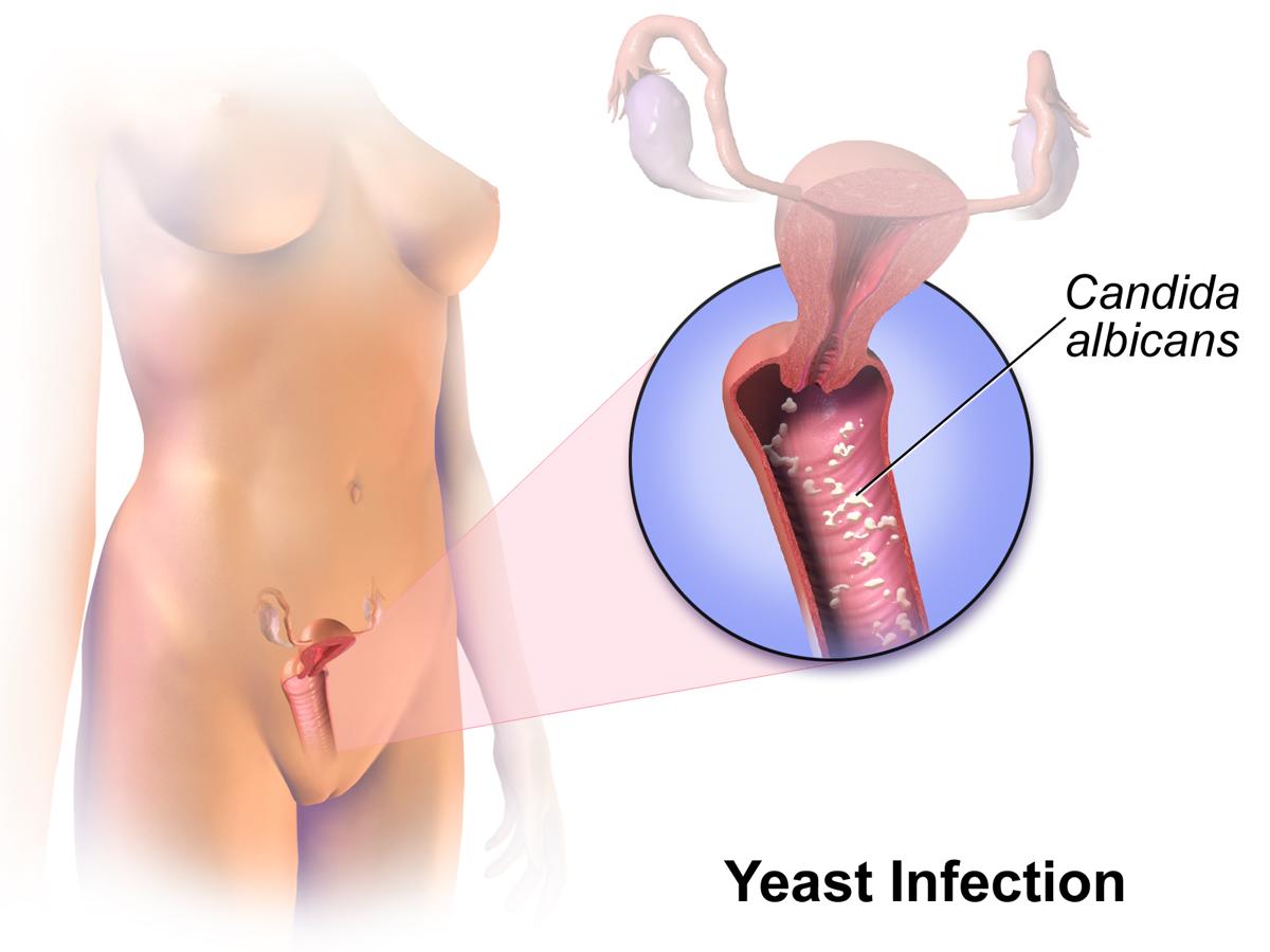 Vajina enfeksiyonları Vajina hastalıkları 97